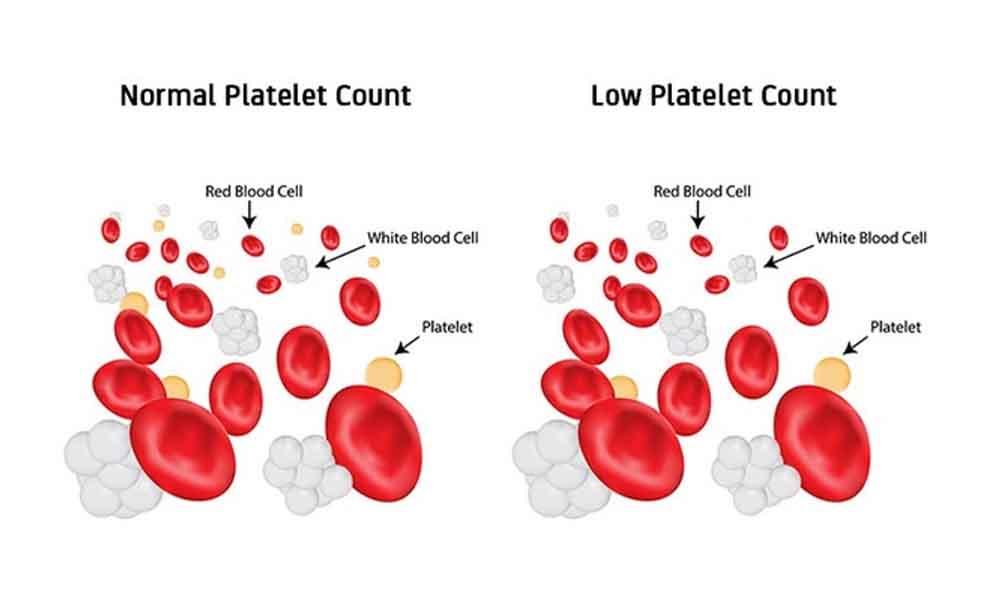 Low Platelet Count