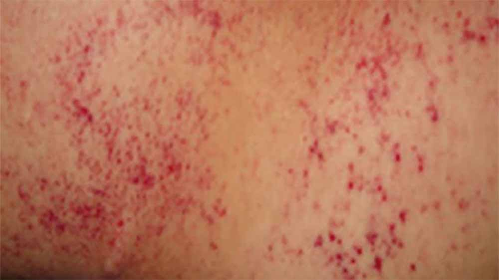 Rashes and spots on your skin