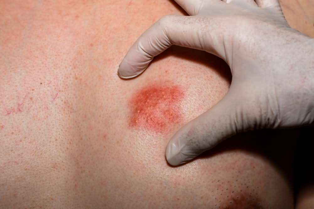 When to worry about a rash in adults