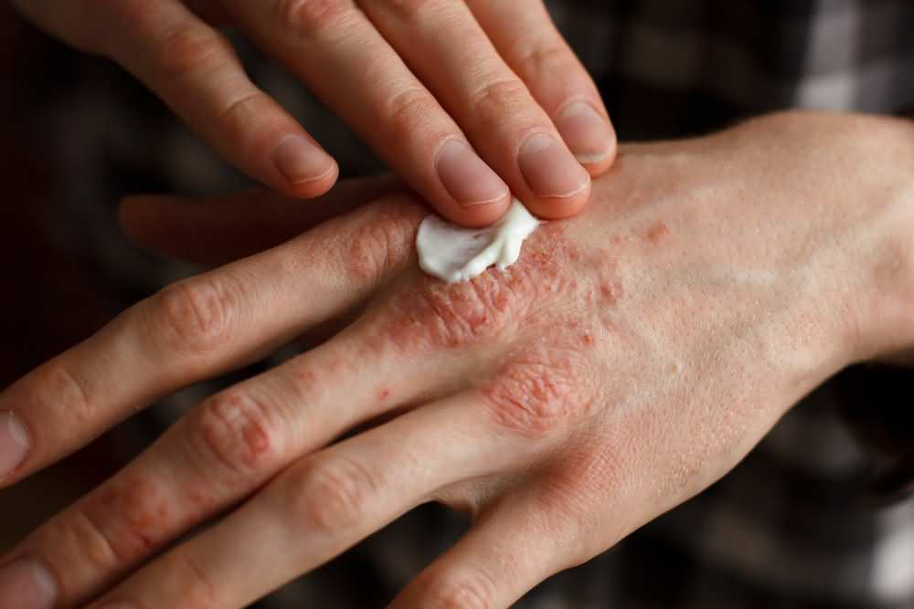 Psoriasis, When to worry about a rash in adults, Psoriasis treatment