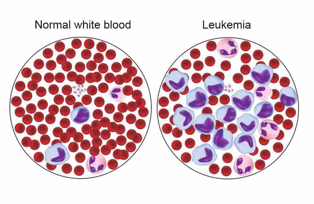 Understanding White Blood Cell Count