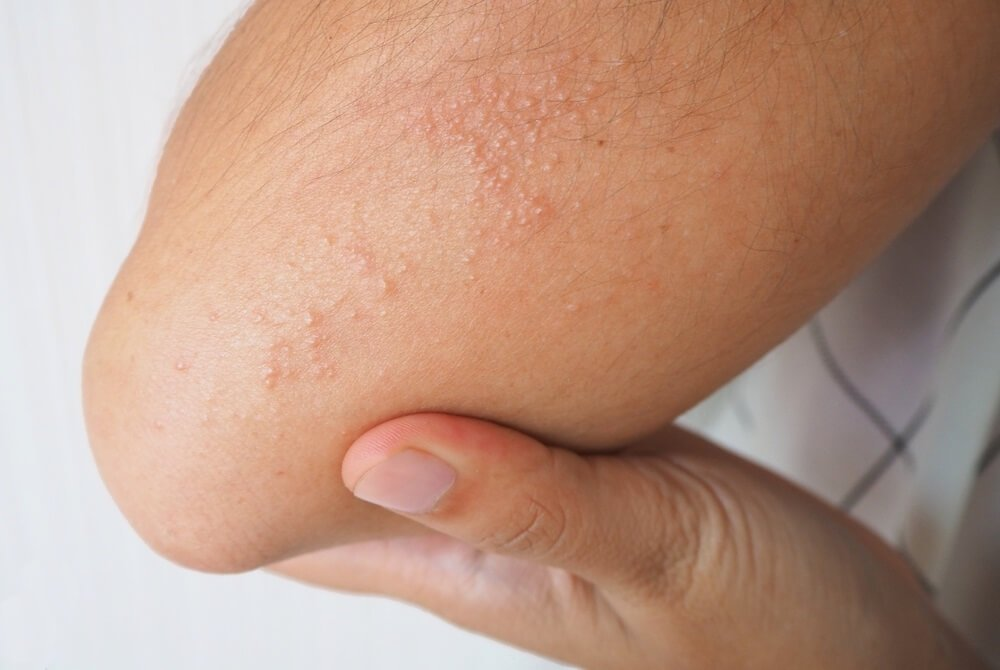 Miliaria, red dots on skin