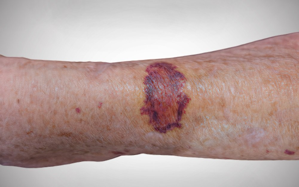 Types of bruises to worry about, when to worry about bruises in adults, purpura