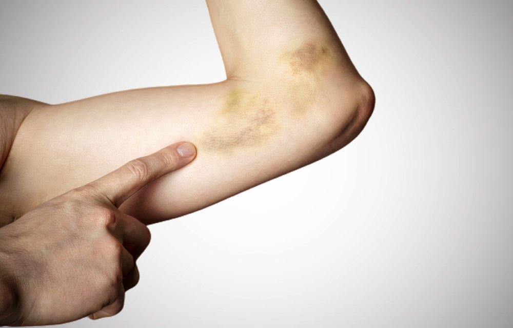 Types of bruises to worry about, when to worry about bruises in adults