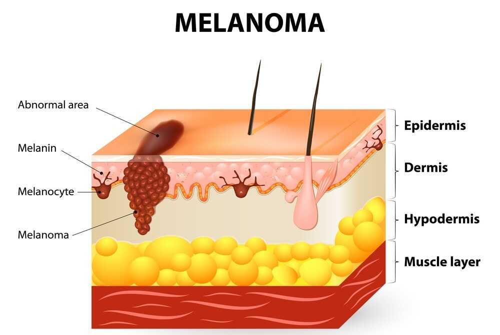 Immunotherapy for melanoma